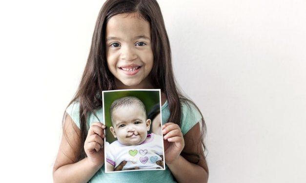 Mormones y Operación Sonrisa realizan campaña médica en Perú