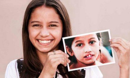"""Miembros de la Iglesia de Jesucristo colaboran con """"Operación Sonrisa"""""""